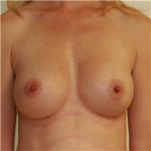 Breast Augmentation After Photo by Steve Laverson, MD; San Diego, CA - Case 40521