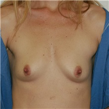 Breast Augmentation Before Photo by Steve Laverson, MD; San Diego, CA - Case 40521