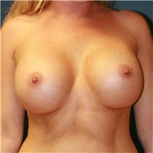 Breast Augmentation After Photo by Steve Laverson, MD; San Diego, CA - Case 40539