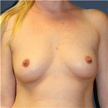 Breast Augmentation Before Photo by Steve Laverson, MD; San Diego, CA - Case 40539