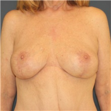 Breast Implant Revision After Photo by Steve Laverson, MD; San Diego, CA - Case 40540
