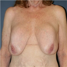 Breast Implant Revision Before Photo by Steve Laverson, MD; San Diego, CA - Case 40540