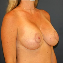 Breast Lift After Photo by Steve Laverson, MD; San Diego, CA - Case 40600