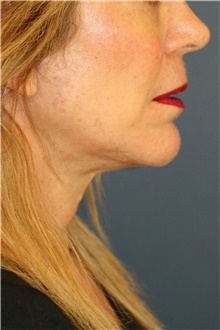 Neck Lift After Photo by Steve Laverson, MD; San Diego, CA - Case 40602