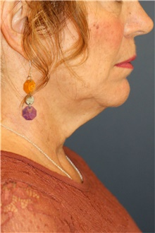 Neck Lift Before Photo by Steve Laverson, MD; San Diego, CA - Case 40602