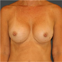 Breast Augmentation After Photo by Steve Laverson, MD; San Diego, CA - Case 40629
