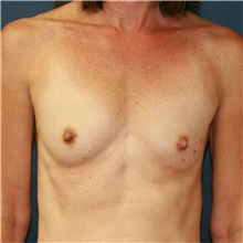 Breast Augmentation Before Photo by Steve Laverson, MD; San Diego, CA - Case 40629