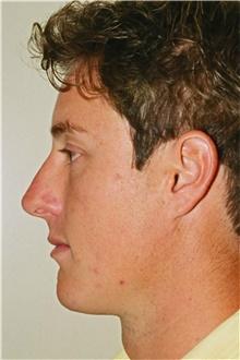 Rhinoplasty After Photo by Steve Laverson, MD; San Diego, CA - Case 40661