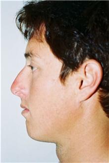 Rhinoplasty Before Photo by Steve Laverson, MD; San Diego, CA - Case 40661