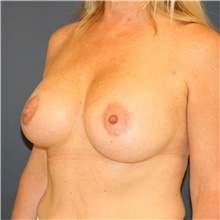 Breast Lift After Photo by Steve Laverson, MD; San Diego, CA - Case 40725