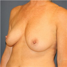 Breast Lift Before Photo by Steve Laverson, MD; San Diego, CA - Case 40725