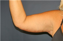 Arm Lift After Photo by Steve Laverson, MD; San Diego, CA - Case 40809