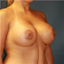 Breast Lift After Photo by Steve Laverson, MD; San Diego, CA - Case 40867