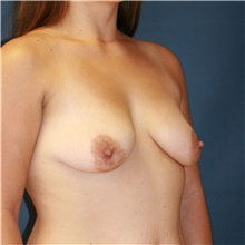 Breast Lift Before Photo by Steve Laverson, MD; San Diego, CA - Case 40867