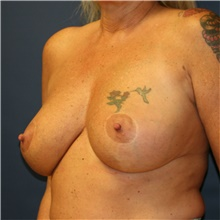 Breast Reduction After Photo by Steve Laverson, MD; San Diego, CA - Case 40919