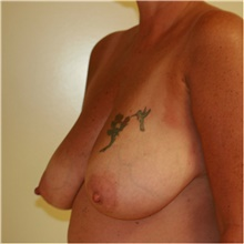 Breast Reduction Before Photo by Steve Laverson, MD; San Diego, CA - Case 40919