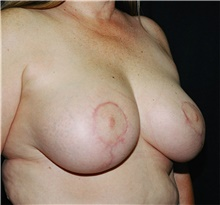 Breast Reduction After Photo by Steve Laverson, MD; San Diego, CA - Case 40921