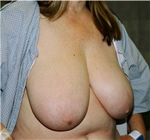 Breast Reduction Before Photo by Steve Laverson, MD; San Diego, CA - Case 40921
