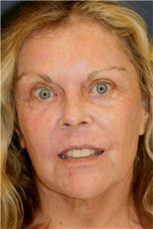 Laser Skin Resurfacing After Photo by Steve Laverson, MD; San Diego, CA - Case 40955