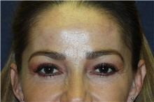 Brow Lift After Photo by Steve Laverson, MD; San Diego, CA - Case 40960