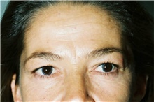 Brow Lift Before Photo by Steve Laverson, MD; San Diego, CA - Case 40960