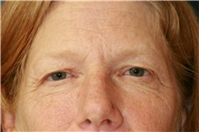 Brow Lift Before Photo by Steve Laverson, MD; San Diego, CA - Case 40969