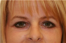 Brow Lift After Photo by Steve Laverson, MD; San Diego, CA - Case 40970