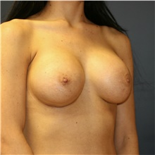 Breast Augmentation After Photo by Steve Laverson, MD; San Diego, CA - Case 41051