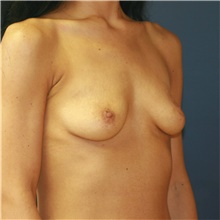 Breast Augmentation Before Photo by Steve Laverson, MD; San Diego, CA - Case 41051