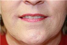 Lip Augmentation / Enhancement After Photo by Steve Laverson, MD; San Diego, CA - Case 41053
