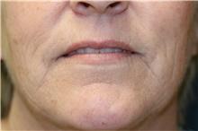 Lip Augmentation / Enhancement Before Photo by Steve Laverson, MD; San Diego, CA - Case 41053