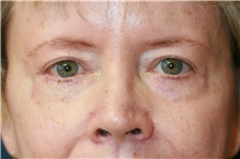 Eyelid Surgery After Photo by Steve Laverson, MD; San Diego, CA - Case 41056