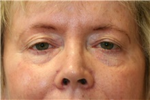 Eyelid Surgery Before Photo by Steve Laverson, MD; San Diego, CA - Case 41056