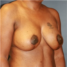 Breast Lift After Photo by Steve Laverson, MD; San Diego, CA - Case 41070