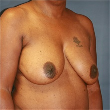 Breast Lift Before Photo by Steve Laverson, MD; San Diego, CA - Case 41070