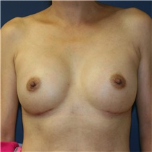 Breast Augmentation After Photo by Steve Laverson, MD; San Diego, CA - Case 41197