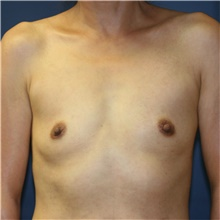 Breast Augmentation Before Photo by Steve Laverson, MD; San Diego, CA - Case 41197