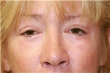 Eyelid Surgery After Photo by Steve Laverson, MD; San Diego, CA - Case 41210