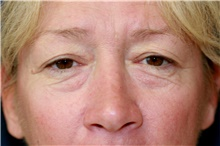 Eyelid Surgery Before Photo by Steve Laverson, MD; San Diego, CA - Case 41210