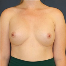Breast Augmentation After Photo by Steve Laverson, MD; San Diego, CA - Case 41269
