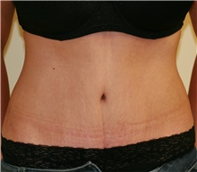 Tummy Tuck After Photo by Steve Laverson, MD; San Diego, CA - Case 41321
