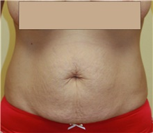 Tummy Tuck Before Photo by Steve Laverson, MD; San Diego, CA - Case 41321
