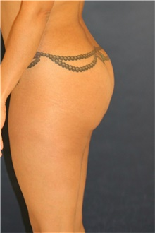 Buttock Lift with Augmentation After Photo by Steve Laverson, MD; San Diego, CA - Case 41350