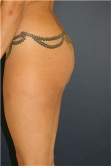 Buttock Lift with Augmentation Before Photo by Steve Laverson, MD; San Diego, CA - Case 41350