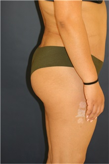 Buttock Lift with Augmentation After Photo by Steve Laverson, MD; San Diego, CA - Case 41351