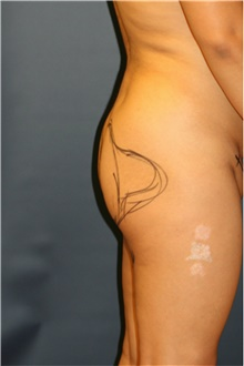 Buttock Lift with Augmentation Before Photo by Steve Laverson, MD; San Diego, CA - Case 41351