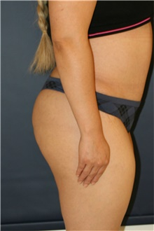 Buttock Lift with Augmentation After Photo by Steve Laverson, MD; San Diego, CA - Case 41462