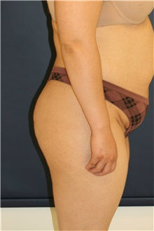 Buttock Lift with Augmentation Before Photo by Steve Laverson, MD; San Diego, CA - Case 41462