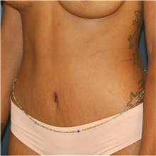 Tummy Tuck After Photo by Steve Laverson, MD; San Diego, CA - Case 41463