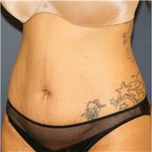 Tummy Tuck Before Photo by Steve Laverson, MD; San Diego, CA - Case 41463